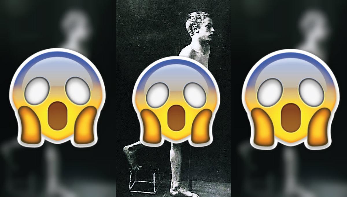 Fotografías síntomas extremos pacientes siglo XIX