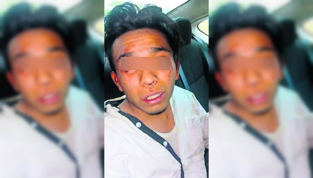 Linchan Jovén Ladrón Toluca Policía Rescate