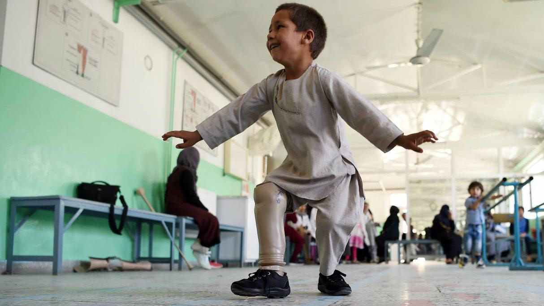 Niño amputado baila con pierna nueva y conmueve a todos