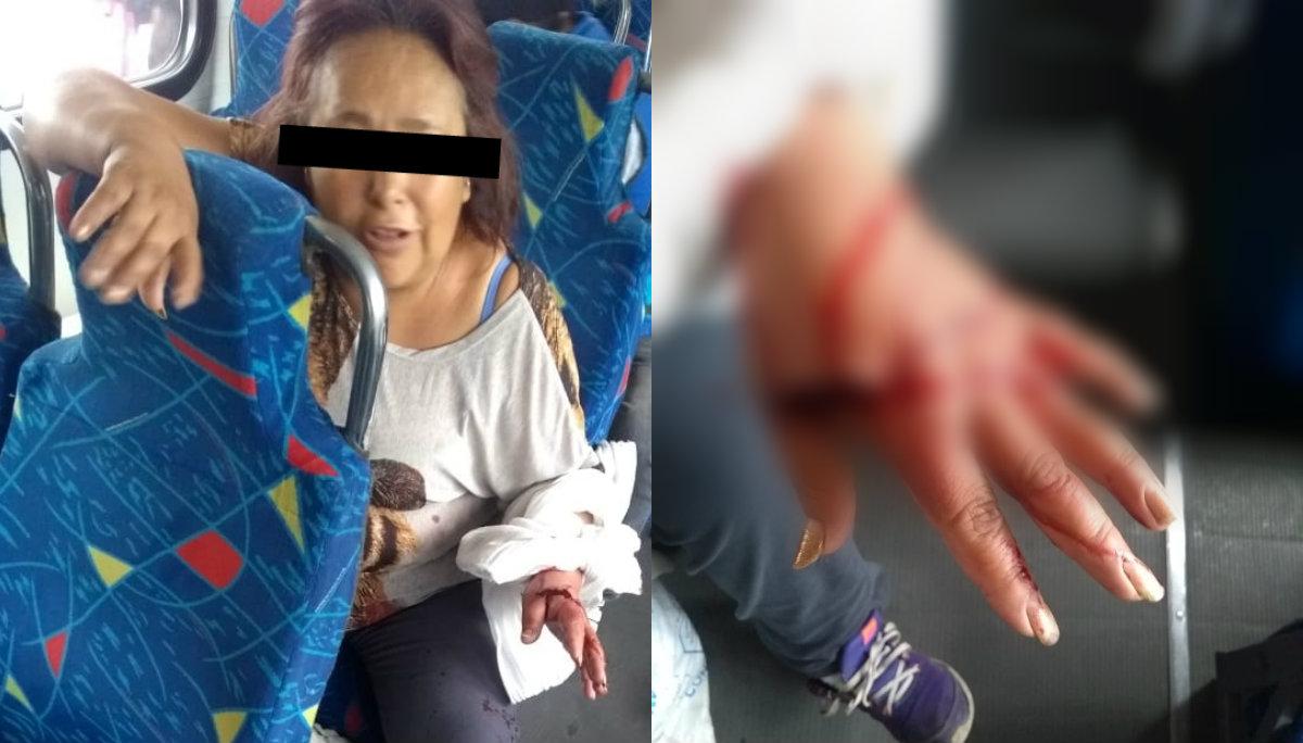 asalto transporte público herida de bala mujer víctima lesionada mano abdomen sangre hospital balbuena mexico-puebla