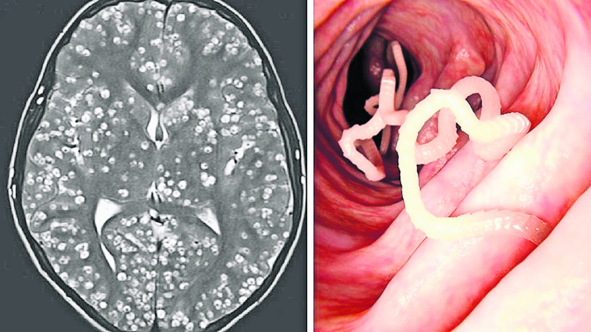 gusanos se alojan en el cerebro