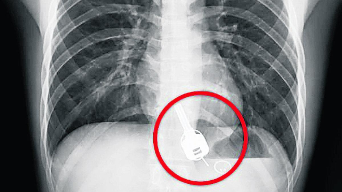 Médicos sacan juego llaves