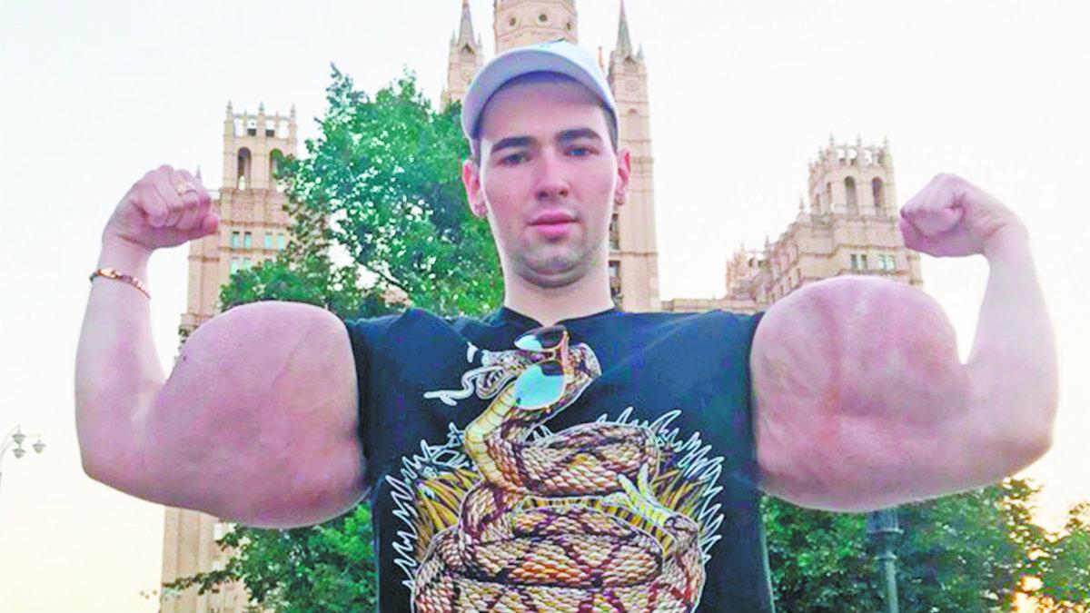 popeye ruso cirugía reducción bíceps amputación