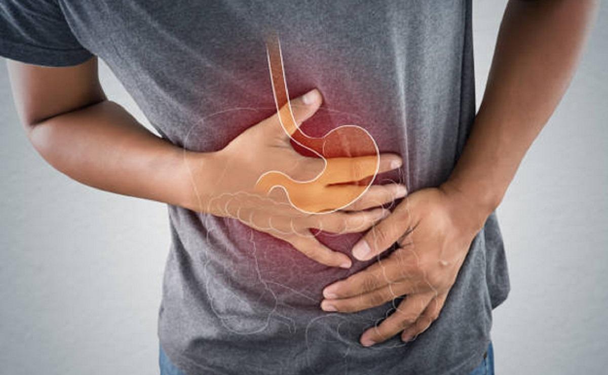 Conoce los alimentos prohibidos en tu dieta si sufres Síndrome del Intestino Irritable