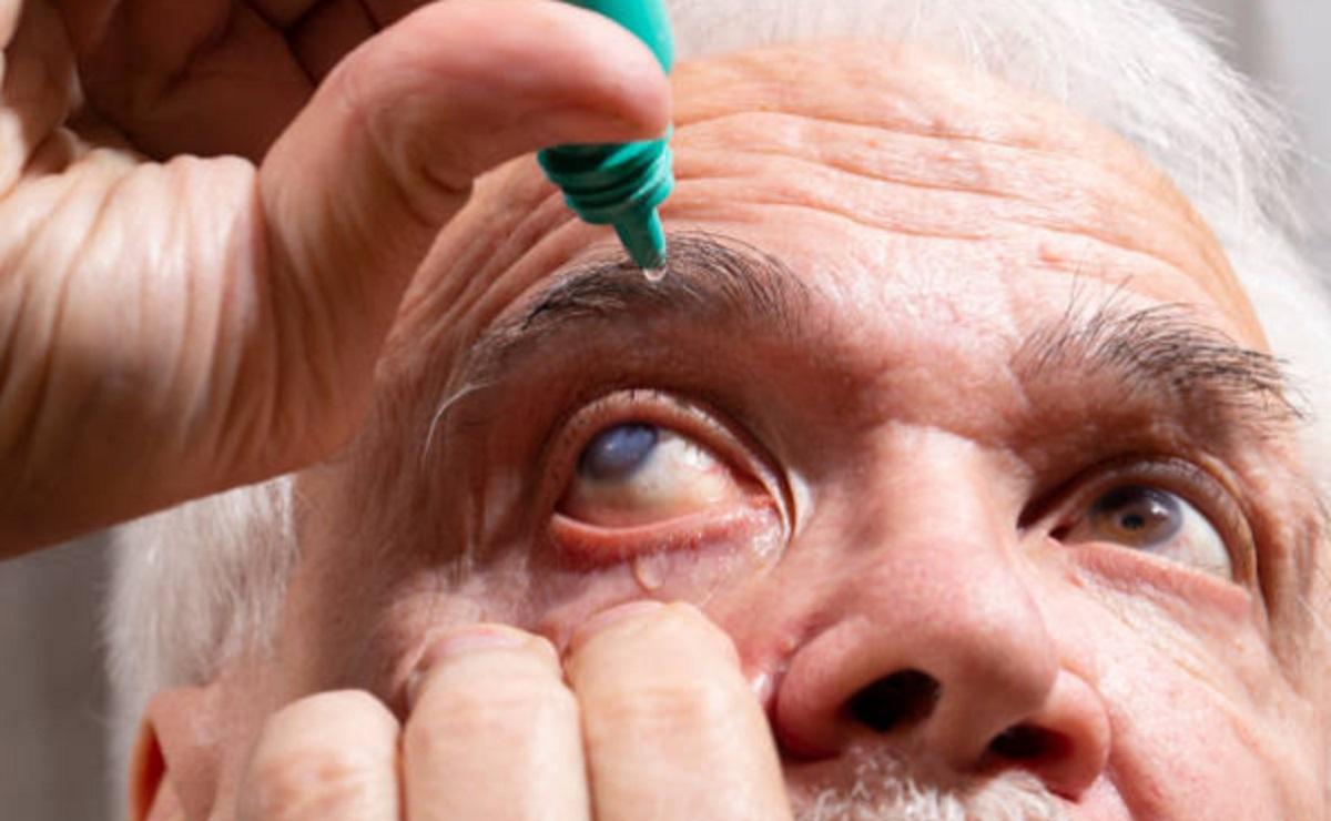 Alertan por catarata senil, puede hacer que después de los 50 años disminuya la visión