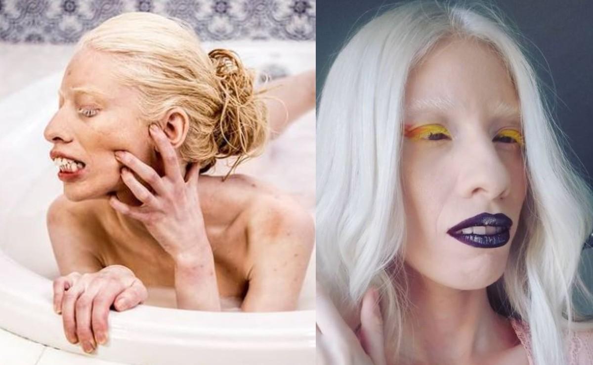 Modelo albina que es mexicana causa sensación en Internet con sus fotos totalmente desnuda