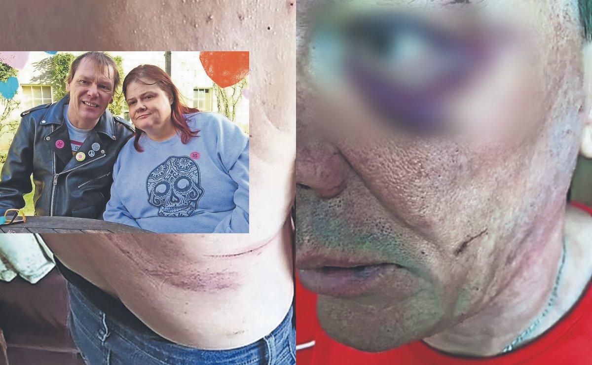 Hombre revela brutales golpes e intento de homicidio de esposa alcohólica, aguantó 3 años