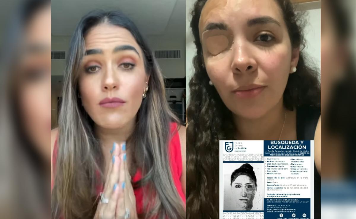 Diputada en CDMX ofrece lana para dar con agresores de Ana Helena, fue atacada con ácido