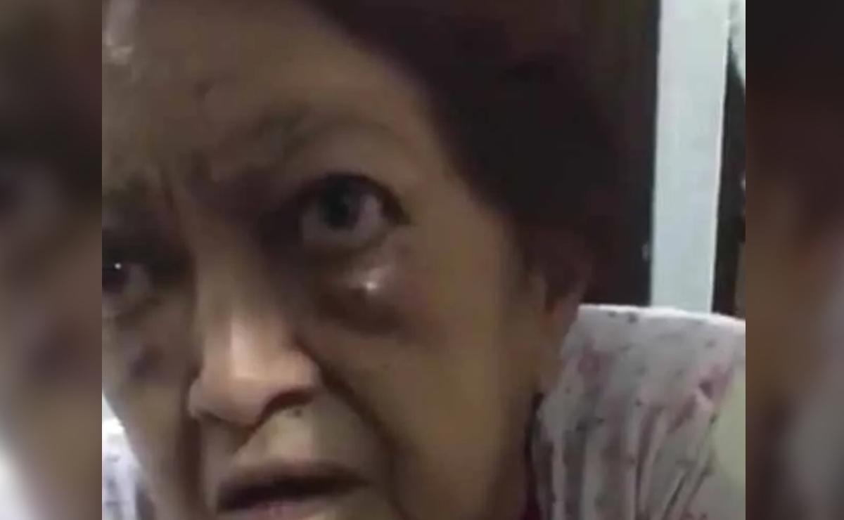 Abuelita de 83 años denuncia a su hijo por golpearla brutalmente, en la Ciudad de México