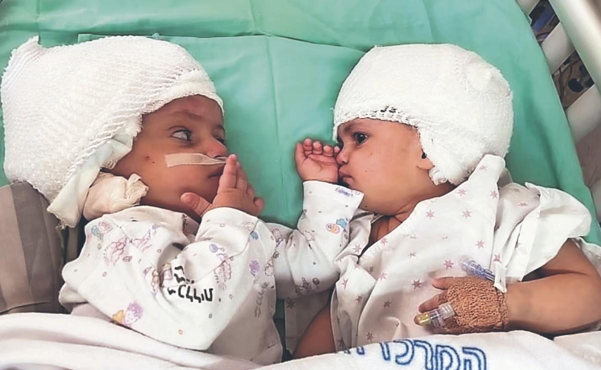 Tras 12 horas de operación, médicos israelíes separan a gemelas unidas por la cabeza