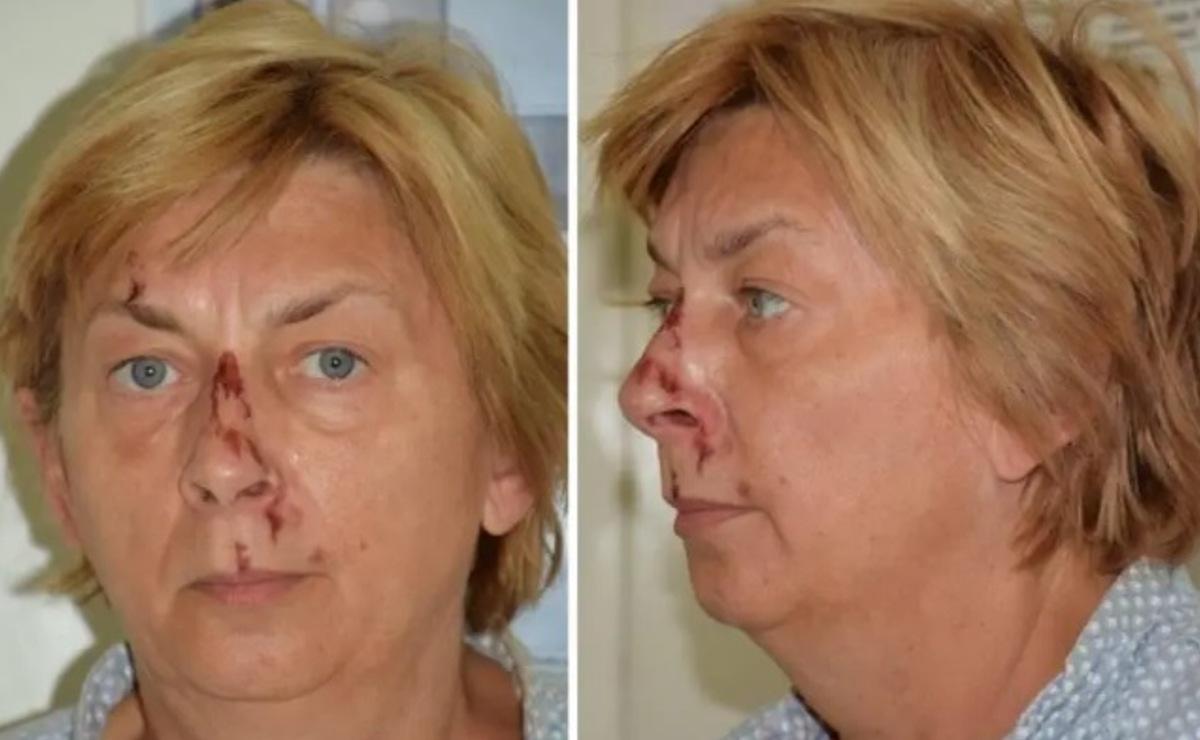 Misteriosa mujer que no recuerda nada aparece ensangrentada, en una isla de Croacia