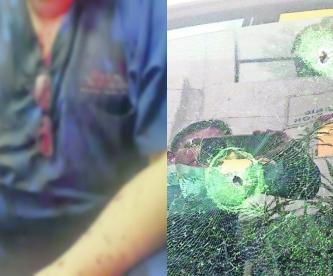 Doctor atraco disparo nariz alcaldía Cuauhtémoc