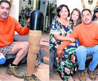bacteria amputan pierna hombre pierde extremidad prótesis historia superación