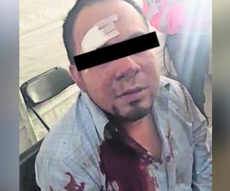 policías golpean atracan hombre ecatepec