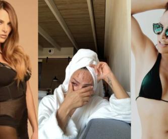 Fabiola Campomanes llora en video con heridas en el rostro, y hace un llamado a sus fans