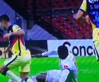 Futbolista del América sufre espeluznante lesión ante el Olimpia de Honduras