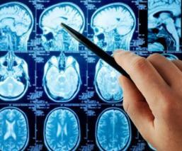 avances científicos crean implante cerebral estimular la memora recuerdos