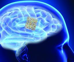 Dispositivo lee la mente Trastornos neurológicos Problemas de habla