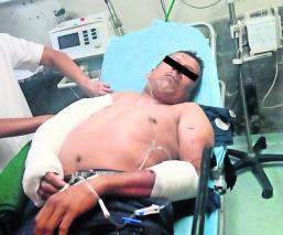 Sobrevive a balacera Apechuga plomazos Morelos
