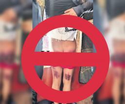 delincuente ratero golpeado morelos yautepec nalgas moradas