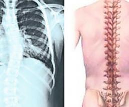 Instituto Ortopédico Rizzoli trasplante vértebras