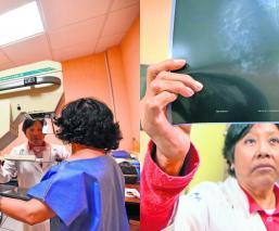 Carga genética cáncer de mama