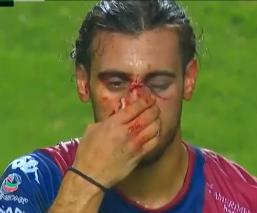 Futbolista de Atlante sufre aparatoso golpe ante Zacatepec