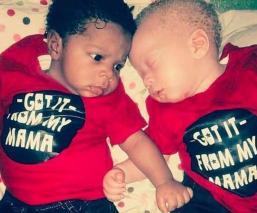 gemelos nacen diferentes Nigeria