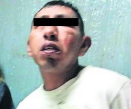 Hombre en presunto estado de ebriedad termina baleado tras agredir a policía, en CDMX