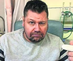 Hombre casi pierde su dedo por morderse las uñas, médicos aseguran que pudo morir