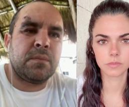 Paparazzi agredido por Livia Brito le pide se haga responsble de sus actos y agresiones
