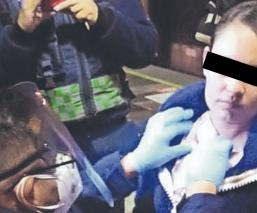 Asaltante ataca y tasajea a mujer policía afuera del Metro Guelatao, en la CDMX