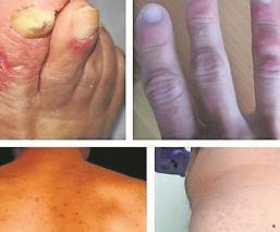 Conoce las cinco manifestaciones de Covid en la piel, según estudio español