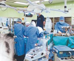 Trasplantan pulmones vivos a mujer que resultó afectada, luego de contagiarse de Covid-19