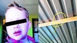 Bala perdida alcanza a niño de 3 años en Iztapalapa lo hieren en el labio