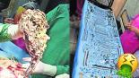 Joyas cirugía operan panza estómago India Runi Khatun Siddhartha Biswas