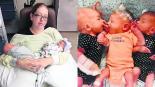mujer da a luz trillizos bebés confunden embarazo piedras en el riñón cálculos renales dolor de parto estados unidos