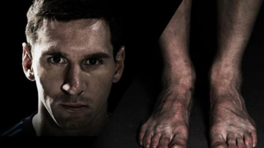 Futbolistas y sus horribles pies