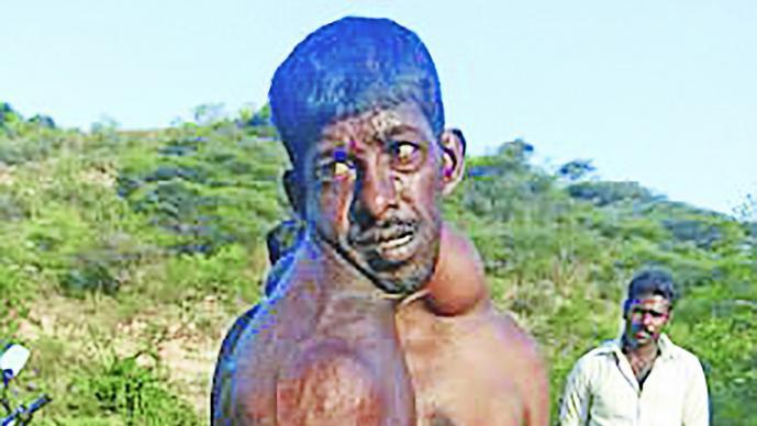 Tumores invaden cuerpo de hombre en la India