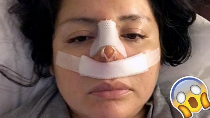 Nariz Operación Mariela Liposucción Rinoplastía Perú
