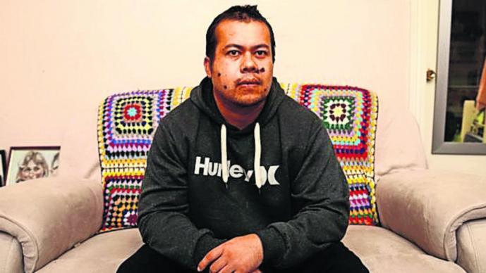 hombre sobrevive ataque balacera disparos vive con tres balas en la cabeza Australia