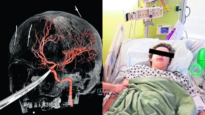 cuchillo atraviesa cráneo joven adolescente accidente hospitalizado sobrevive kansas estados unidos