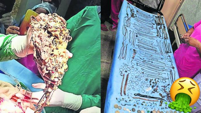 Mujer se traga 1,5 kg de joyas y monedas de oro