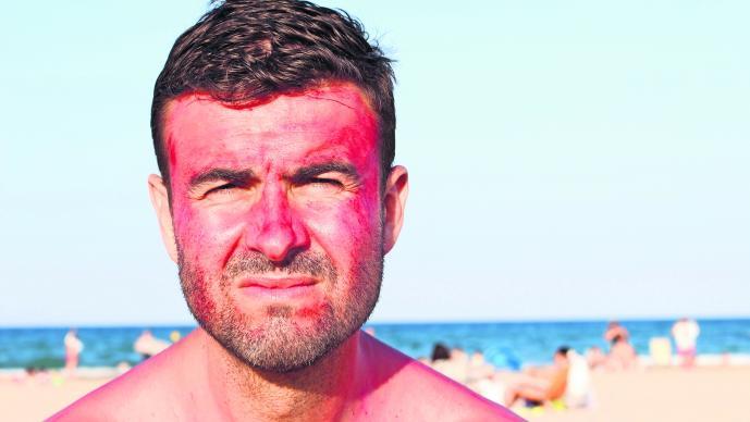 daños ocasionados por el sol en la piel