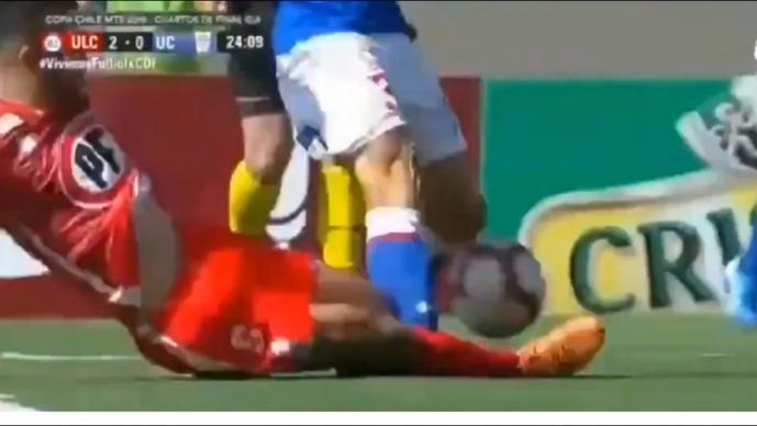 Video de la terrible lesión del Gato Silva