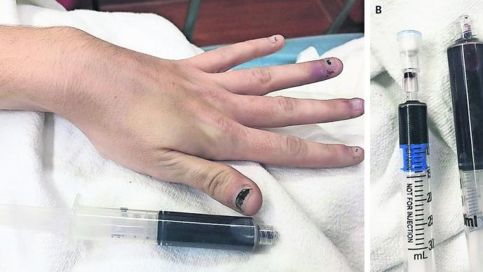 mujer con sangre azul automedicarse
