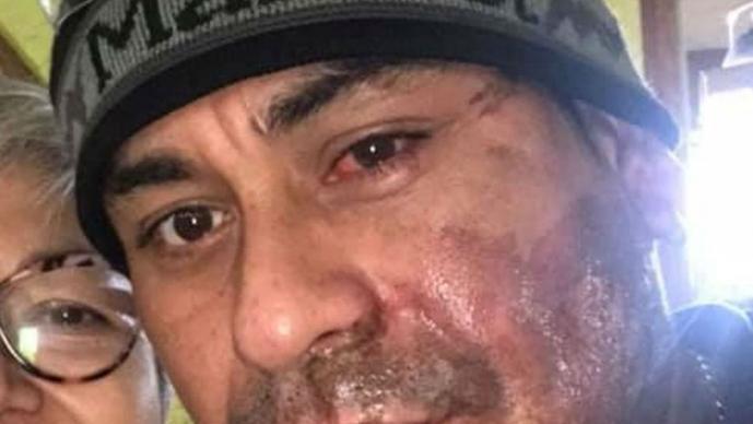 ácido hispano ataque racista