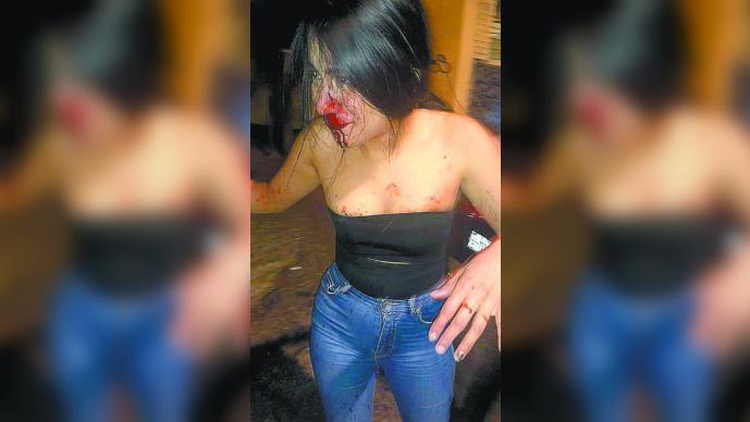 Agresiones físicas guardia de seguridad Balaré Cuernavaca