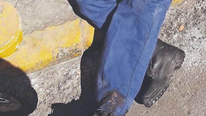 Conductor de tractocamión que maniobraba atropella y mata a franelero, en Edomex