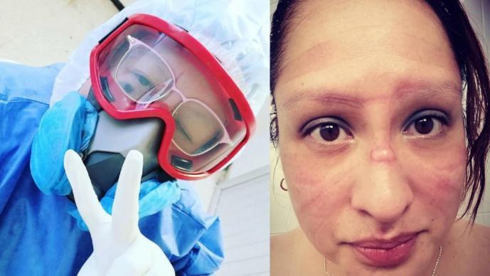 Enfermera de la CDMX explota contra los que no se cuidan vs Covid y envía este mensaje